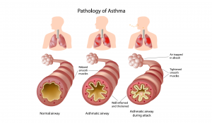 Asthma asthma Asthma Cure – How Can You Control and Prevent Asthma Attacks? Asthma 300x175