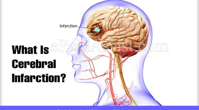 Cerebral Infarction cerebral infarction Cerebral Infarction – How They Occur Cerebral Infarction 800x445