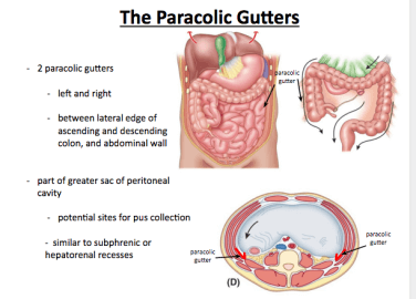 Paracolic Gutter paracolic gutter What to Do Before Installing a Paracolic Gutter? Paracolic Gutter